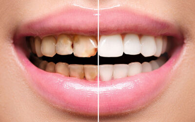 Getting an Affordable Dental Crown or Jacket Crown in Manila, Philippines — What Do You Need to Know?